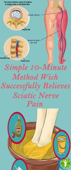 For all people with sciatic nerve pain, we have a rather natural solution that will only take up 10 minutes of your time.
