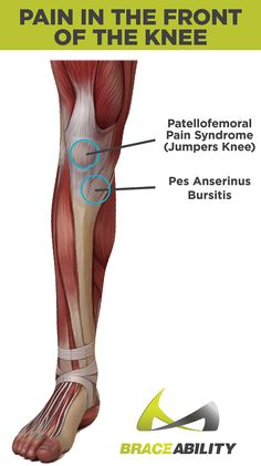 types of pain you feel in the front of your knee - patellofemoral pain syndrome, jumpers knee and pes anserinus bursitis Knee Osteoarthritis, Knee Arthritis, Rheumatoid Arthritis, Runners Knee Pain, Yoga For Knees, My Knee Hurts, Natural Cure For Arthritis, Knee Pain Exercises, Knee Problem