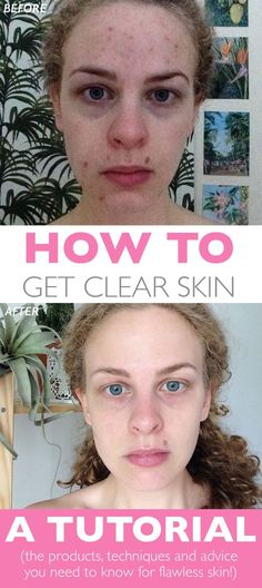 Want to get rid of spots and blemishes gently and naturally? Want clear skin? Want your skin to be clear, smooth, hydrated and soft? Click to read about how I completely transformed my skin, products recommendations and advice for sensitive skin, natural products and blemishes. Learn how to view your skincare as a journey - getting perfect skin is a process, and something I believe we should be able to enjoy!