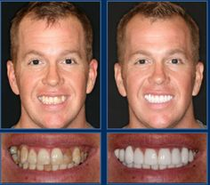 Jame's smile perfected and picture yourself as his after shot. A smile like this is only a couple visits away. Austin dental implant alternatives like crowns and bridges are quick solutions for teeth that are:- Chipped - Misaligned - Crooked - Disc. Dental Bridge Cost, Sedation Dentistry, Dental Veneers, Perfect Teeth, Smile Makeover, Maryland, Dental Procedures, Dental Crowns