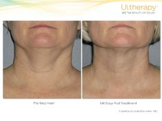 Ultherapy results under the chin and on the neck.  #NeckLift #Ultherapy #BeforeandAfter