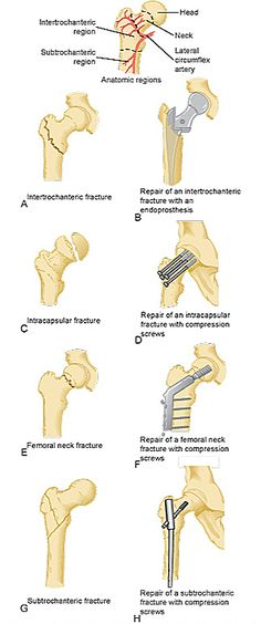 Hip fractures and surgical repairs