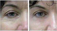 15 Jahre weniger sind auch ohne Botox garantiert