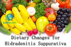 Hidradenitis Suppurativa Dietary Changes