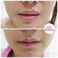 #Punisaclinic #ศัลยกรรม #ปาก #ศัลยกรรมปาก #ปากบาง #ปากกระจับ #ปากปีกนก  #Beauty #Number1 #Lips #LipReduction #LipSurgery #Professional #Lip #Reduction #Surgery #Thailand #plasticsurgery #lipreductionsurgery #thailand #doctorthinlips#Punisaclinic #lipsurgery #lipreduction#lipreductionsurgery #asianlips #plasticsurgeons#plasticsurgery #Thailandsurgery Lip Surgery, Lips