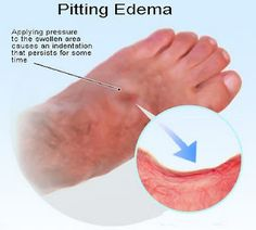 Natural Cure For Edema