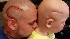 Kansas dad gets a tattoo to match his son's brain cancer surgery scar