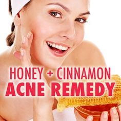 Magical combination of honey and cinnamon works wonders in our body