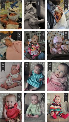 I wish I took such amazing photos in the NICU. Would love to do this on the twins 1st birthday.