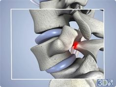 Spondylolisthesis - bone at red mark breaks and lower vertebrae shifts forward and out of alignment with vertebrae above and below, pinching the spinal nerve. Spinal Nerve, Spinal Cord, Chronic Illness, Chronic Pain, Spondylolisthesis, Disk Herniation, Degenerative Disc Disease, Spinal Stenosis, Spine Health