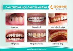 Quy trình trám răng công nghệ Laser 3.0