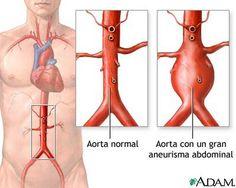 Aneurisma da Aorta Abdominal: duas opções de tratamento para a doença