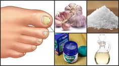 Do This One Unusual Trick Before Work To Melt Away Pounds of Belly Fat Beauty Care, Beauty Hacks, Ovarian Cyst Treatment, Manicure E Pedicure, Natural Cosmetics, Hair Health, Natural Medicine, Health And Wellbeing, Health Remedies
