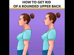 How to get rid of rounded upper back Garlic Health Benefits, Health Savings Account, Natural Sleep Remedies, Heath And Fitness, Posture Correction, Lower Blood Pressure, Sleep Apnea, Health Articles, How To Get Rid