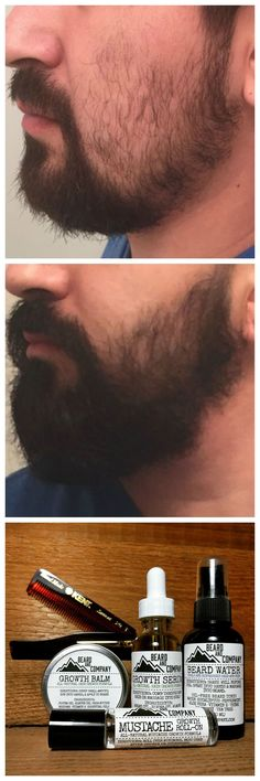 I used to have such patchy beard growth but after using Beard and Company's all-natural Beard and Mustache Growth Kit, my beard has grown in thicker and fuller thanks to the addition of fatty acids and essential nutrients. Best Beard Growth, Beard Growth Kit, Beard Growth Products, Mustache Grooming, Beard Grooming Kits, Mustache Growth, Beard No Mustache, Moustache, Natural Beard Oil