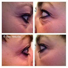 Another happy customer after 6 days on Optimera by NERIUM!    Email me at bevbrucki@me.com to set up YOUR FREE 5 day trail for OPTIMERA!   This could be YOU !