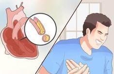 Remedio natural para las arterias obstruidas!