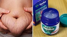 How To Use Vicks VapoRub To Get Rid Belly Fat & Cellulite, Eliminate Stretch Marks, Acne Scars & Have Firmer Skin. Home Remedies For Cellulite And Stretch Marks Vicks Vaporub, Health Remedies, Home Remedies, Natural Remedies, Belly Fat Burner, Chest Congestion, Abdominal Fat, Abdominal Workout, Fat Workout