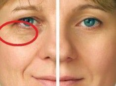 Get Your Very Own Facelift Without Surgery By Employing Easy Facial Yoga Routines Facial Yoga, Facial Muscles, Easy Yoga Poses, Yoga Poses For Beginners, Facelift Without Surgery, Face Yoga Exercises, Toning Exercises, Yoga Information, Organic Beauty