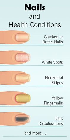 How Your Nails Warn You About Serious Health Conditions - Th.- How Your Nails Warn You About Serious Health Conditions – The Health Science Journal nails-health-conditions - Nail Symptoms, Fingernail Health, Nails And Health, Fingernail Ridges, Fingernail Fungus, Brittle Nails, Manicure Y Pedicure, Hair Loss Treatment, Nail Treatment