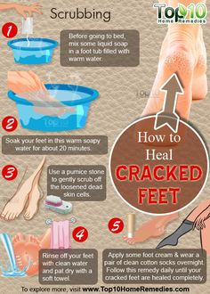 Prev post1 of 3Next Cracked feet, also known as heel fissures, are a common problem for people of all ages, mostly caused by lack of moisture. Other causes include, standing for long hours, using harsh soaps, cold weather, continuous exposure to water, being overweight, and wearing improper footwear. Conditions like eczema, psoriasis, thyroid disease and diabetes can also