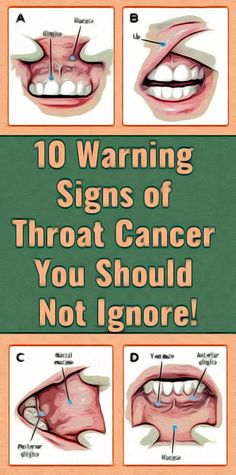 10 Warning Signs Of Throat Cancer You Should Not Ignore! Healthy Yogurt, Healthy Detox, Healthy Juices, Healthy Eating Tips, Healthy Life, Healthy Recipes, Health And Wellness Quotes, Health And Fitness Articles, Health Tips