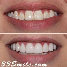 We hope everyone had a good weekend! Our patient was self conscious of the discoloration and so we remedied that with prepless veneers. we always offer free cosmetic consultations and you can schedule online through our website! #drjamsmiles #33Smile . . All photos and video of patients are of our actual patients. All media is the of Cosmetic Dental Associates. Any use of media contained herein is prohibited without written consent. . . #satx #satxdentist #dentistry #goals #smile #teeth…