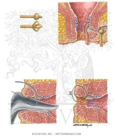 Anorectal Fistula Appearance and Management of Anorectal Crohn's Disese