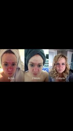 Rosacea? Gone! This astounds me with every result I see!! Facebook.com/NaturalElementsByVicky