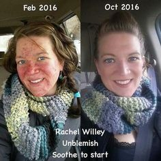 Just stop and really look at Rachel's results, in less than a year she has completely changed her skin! Sometimes your skin needs the SOOTHE line first to calm your sensitive skin, THEN the UNBLEMISH to fight the acne! Rodan And Fields Soothe, Rodan Fields Skin Care, My Rodan And Fields, Rodan And Fields Business, Love Your Skin, Good Skin, Acne Solutions, Skin Care Regimen, Health And Wellness