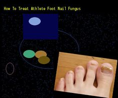 How to treat athlete foot nail fungus - Nail Fungus Remedy. You have nothing to lose! Visit Site Now