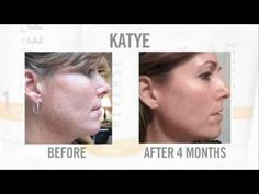 Rodan & Fields Skin Care Products. Before and After Pictures. Pictures feature real users of ANTI-AGE Regimen, UNBLEMISH Regimen, SOOTHE Regimen, and REVERSE Regimen.  www.BelindaB.myrandf.com/shop