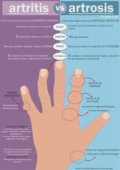 Artritis o Artrosis. Diferencias. Tratamientos ideales para todas las edades. La Unidad Especializada en Ortopedia y Traumatologia www.unidadortopedia.com PBX: +571-6923370, Móvil: +57-3175905407, Bogotá, Colombia.