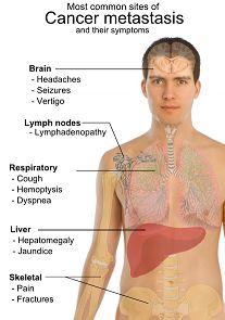 Pleural Mesothelioma: Symptoms, diagnosis and cure Radiation Therapist, Oncology Nursing, Liver Cancer, Bone Cancer, Liver Disease, Lymph Nodes, Nursing Notes, Nursing Tips, Cervical Cancer