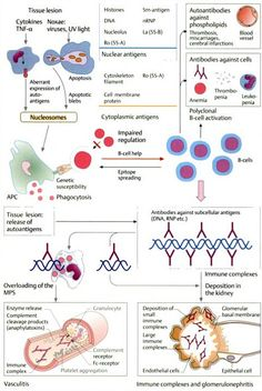 "From ""Color Atlas of Immunology"" by Gerd Burmester, Antonio Pezzutto: Pathogenesis of SLE #lupus"