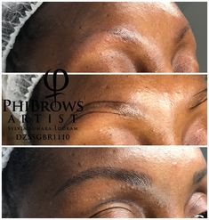 Clinic, Brows, Tattoo Quotes, Aesthetics, London, Tattoos, Beauty, Makeup Eyebrows, Eyebrows