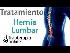 Tratamiento de la hernia discal lumbar mediante automasajes, estiramientos y ejercicios   Fisioterapia Online