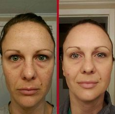 Face Gymnastics: Facial Acupressure Can Offer The Finest Non-Invasive Facelifts