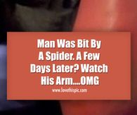 Man Was Bit By A Spider. A Few Days Later? Watch His Arm....OMG