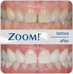 Before And After Zoom Whitening Natural Teeth Whitening White Teeth Zoom Teeth
