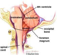 Great explanation of what Chiari is by ProScan Imaging Education Foundation – Continuing Medical Education Occipital Neuralgia, Intracranial Hypertension, Brain Anatomy, Anatomy And Physiology, Chronic Pain, Fibromyalgia, Chronic Illness, Pseudotumor Cerebri, Continuing Medical Education