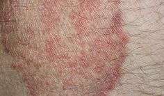 jock-itch-is-a-major-cause-of-sore-rash-on-groin