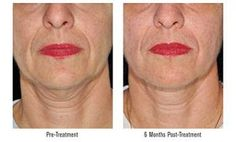 Radiofrequency (RF) energy treatments are for non-surgical skin tightening, loose or sagging skin neck, face jaw line eyes cheeks non invasive Skin Treatments, What Is Cellulite, Reduce Cellulite, Radio Frequency Skin Tightening, Natural Face Moisturizer
