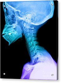 Human Skull And Cervical Spine Acrylic Print by Medical Body Scans