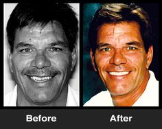Crooked Teeth before and After - Patient of Thomas E. Oppenheim, DMD. www.oppenheimsignaturesmiles.com