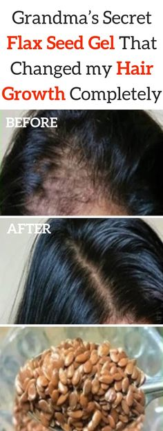 Grandma's Secret Flax Seed Gel That Changed my Hair Growth Completely seed benefits seed crackers seed gel seed recipes seed recipes how to use Healthy Hair Growth, Hair Growth Tips, Extreme Hair Growth, Flax Seed Benefits, Oil Benefits, Natural Hair Gel, Flaxseed Gel, Flax Seed Recipes, Stop Hair Loss