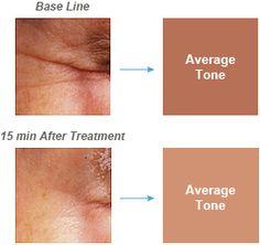 Per-Wrinkle Tests