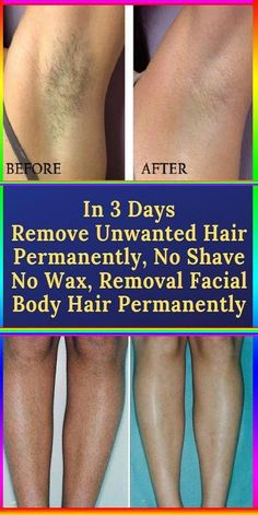 Shave Hair Removal In 3 Days Remove Unwanted Hair Permanently, No Shave No Wax, Removal Facial & Bo. - In 3 Days Remove Unwanted Hair Permanently, No Shave No Wax, Removal Facial & Body Hair Permanently - Chin Hair Removal, Upper Lip Hair Removal, Hair Removal Remedies, Hair Removal Methods, Laser Hair Removal, Remove Unwanted Facial Hair, Unwanted Hair, Perfectly Posh, Protective Styles