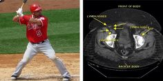 Baseball Injuries, Albert Pujols, Lymph Nodes, Golf Ball, Baseball Cards, Sports, Hs Sports, Sport, Wiffle Ball