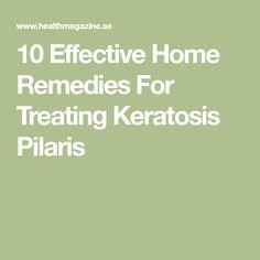 10 Effective Home Remedies For Treating Keratosis Pilaris